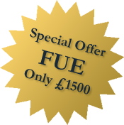 Special Offer FUE Only £1500